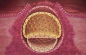 Эндометрий при Эко