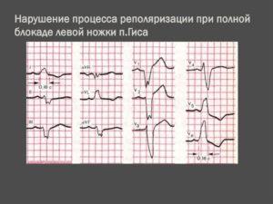 Диффузное нарушение процесса реполяризации и синусовый ритм