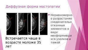 Диффузные изменения молочных желез