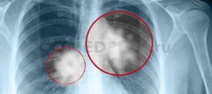 Метастаз нет при флюрографии