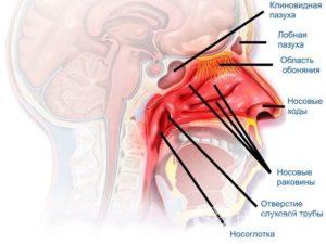 Вазомоторный ринит и головные боли