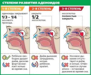 Что принимать при кашле если аденоиды 1-2 ст