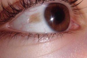 Черное пятно на глазном яблоке