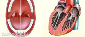 Влияние хронического тонзиллита на сердце