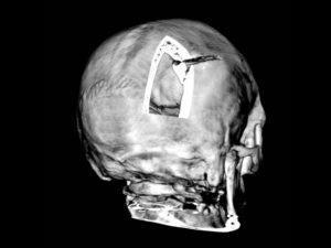 Кости свода черепа, первое узи, патология или нет
