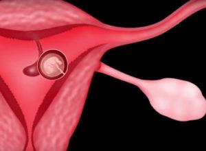 Децидуальный полип и обильные кровотечения при беременности