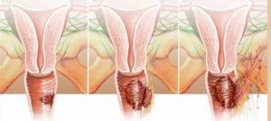 Воспаление влагалища после секса