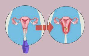 Можно ли при использовании лактагеля жить половой жизнью?