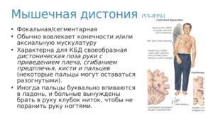 Мышечная дистония-тремор, сегментарная форма