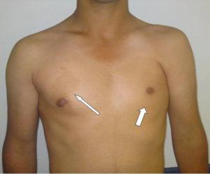 Врождённая асимметрия груди