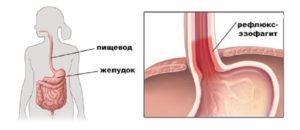 Дистальный катаральный рефлюкс эзофагит и всд
