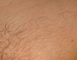 Волосики на лобке у грудничка