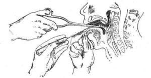 Что-то мешается в горле будто как ком или инородное тело