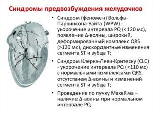 Двухклапанное сердце, clc и wpw феномен у ребенка
