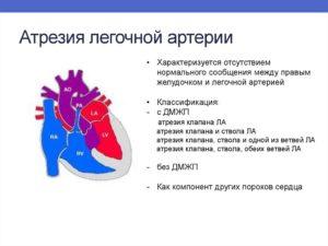 ВПС ДМЖП, ТМС, гипоплазия Легочной артерии
