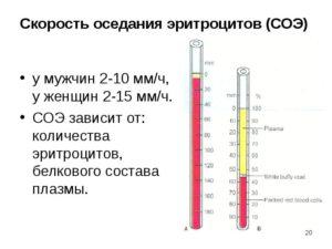 Высокая СОЭ 64мм/ч