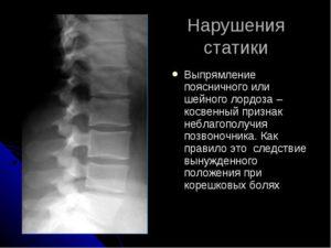 Дегенеративно-дистрофические изменения шейного отдела позвоночника с нарушение статики