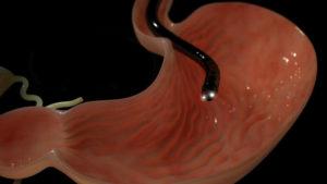 Эритематозная гастродуоденопатия