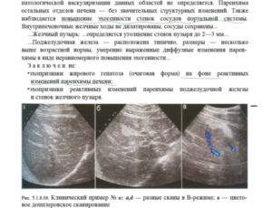 Диффузные изменения печени, поджелудочной железы. Деформация желчного пузыря