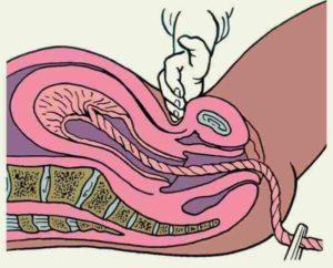 Возможна ли беременность при петинге, если пальцы были во влагалище?