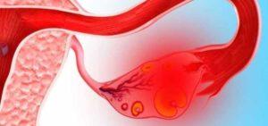 Внематочная беременность или киста