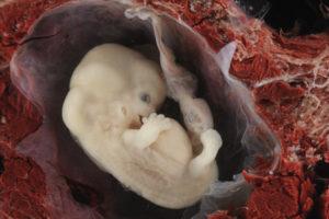 Может ли малыш замёрзнуть в утробе?