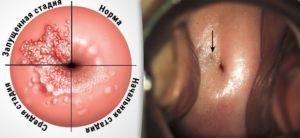 Метаплазия, цервицит, паракератоз, дисфункция яичников, гормональная терапия