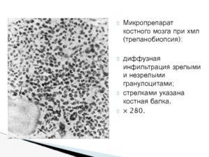 Что такое жировая инфильтрация костного мозга?