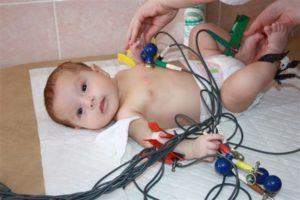 ЭКГ ребенка. 1 месяц