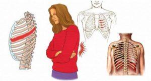Межреберная невралгия иррадирует в мышцы живота?