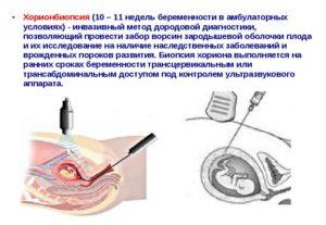 Мозаицизм, процедура биопсин хориона