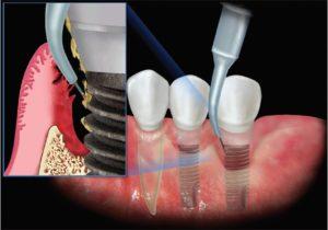 Возможные осложнения после лечения зубов