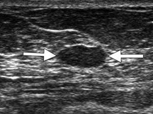УЗИ картина м/железы. Кисты левой молочной железы