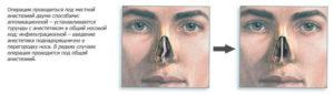Давление после операции по исправлению перегородке носа повышенное. Что это?