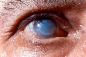 Чем лечить ожоги глаз?