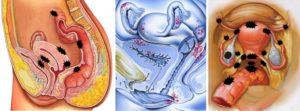 Эндометриоз и зачатие