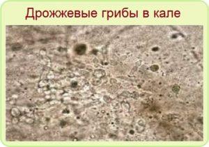 В кале споры и грибы в большом количестве