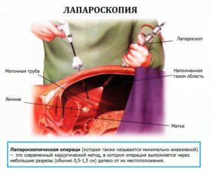 Месячные после лапароскопии маточной трубы
