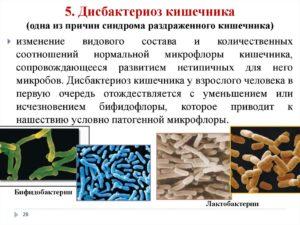 Дисбактериоз или нет