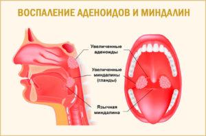 Увеличеные миндалины и храп