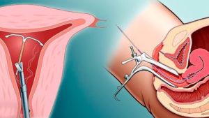 Внутриматочная спираль и боль внизу живота