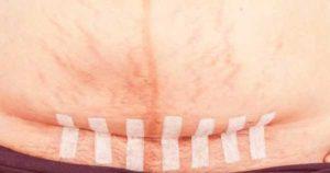 Воспаление после кесарево
