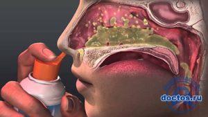 Чем можно лечить зелено-красную слизь в носу