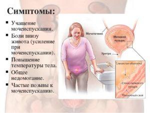 Частые позывы в туалет, боли в области живота