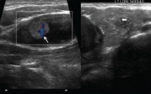 УЗИ щитовидной железы, киста правой доли