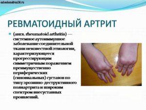 Диагноз смешанное заболевание соединительной ткани, синдром Шарпа(ревматоидный артрит
