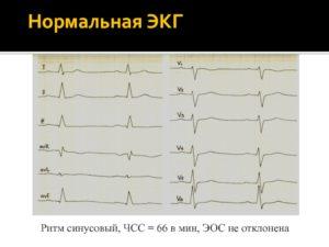 ЭКГ: ЭОС отклонено вправо, синусовый ритм, ЧСС=62