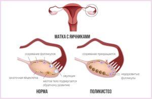 Длинный цикл и очень поздняя овуляция на фоне поликистоза яичников