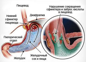 Дистальный рефлюкс-эзофагит