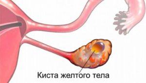 Набухла грудь при кисте жёлтого тела